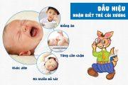 Đặc điểm bệnh còi xương ở trẻ em và cách phòng tránh