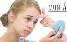 4 cách trị mụn ẩn hiệu quả nhất ngay tại nhà