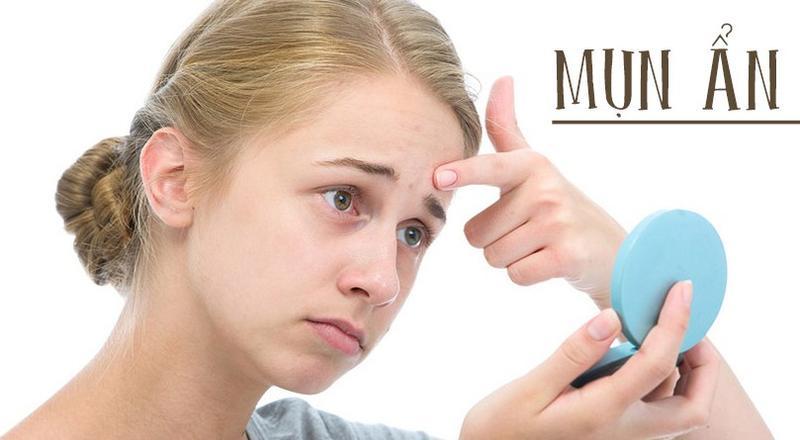 4 cách trị mụn ẩn hiệu quả nhất ngay tại nhà - cách trị mụn ẩn dưới da